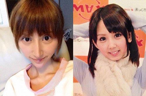 عمل زیبایی در ژاپن