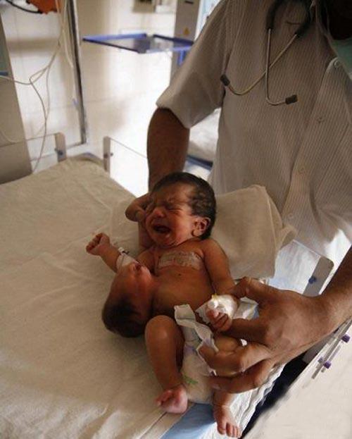 دختری با یک سر روی شکمش متولد شد! (عکس)