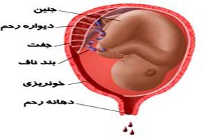 آیا خونریزی در دوران بارداری خطرناک است؟