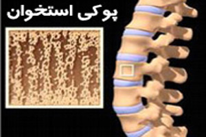 عواملی که موجب پوکی استخوان ها می شوند