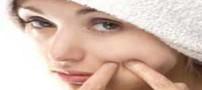 راه درمان جوش های صورت در دوران بلوغ