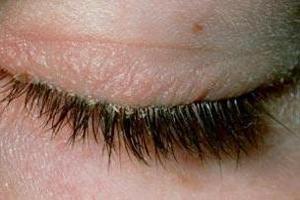 علت شوره زدن مژه ها چیست؟