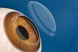 چه زمانی نیاز به پیوند قرنیه چشم داریم؟