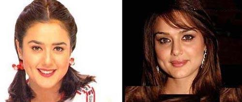 چهره قبل و بعد از عمل ستارگان بالیوود (عکس)