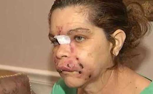 این خانم برای زیبایی، چهره اش را از دست داد (عکس)