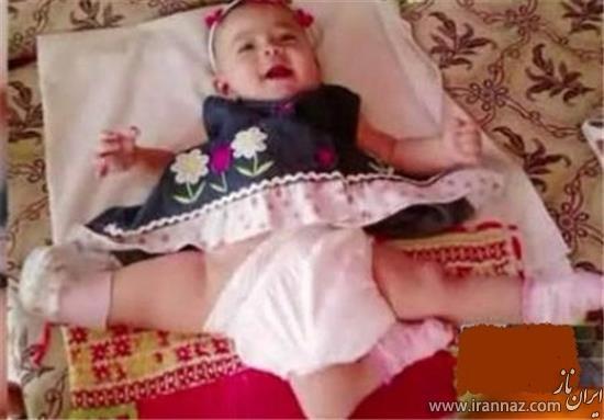 این نوزاد با 3 پا باید زندگی کند! (عکس)