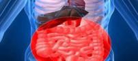 همه آنچه باید درباره بیماری سلیاک بدانید