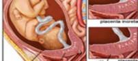 علل چسبندگی جفت در دوران بارداری