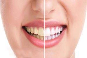 روش هایی برای از بین بردن زردی دندان ها