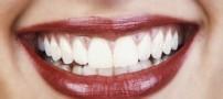 راه های جلوگیری از پوسیدگی دندان ها
