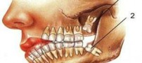علت کشیدن دندان عقل چیست؟
