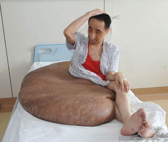 جراحی تومور 110 کیلویی در پای این مرد! (عکس)