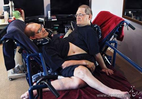 زندگی مسن ترین دوقلوهای به هم چسبیده (عکس)