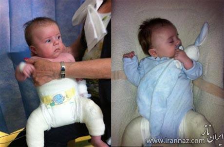 لباس بتنی یک نوزاد برای اصلاح بیماری نادر (عکس)