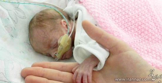 تولد فسقلی ترین نوزاد در لانگلونز (عکس)
