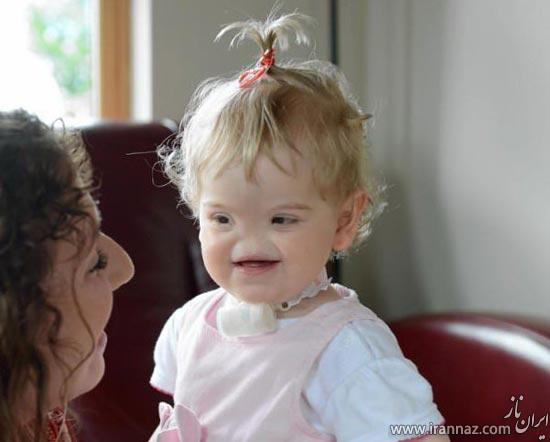 زندگی عجیب این کودک بدون بینی! (عکس)