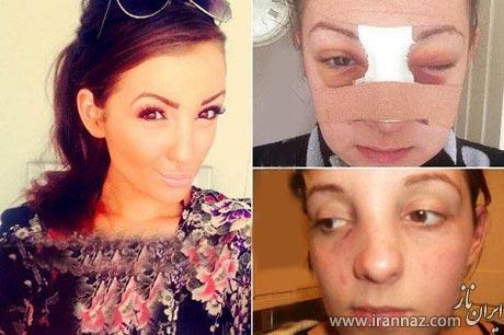 دختر جوان پس از کتک خوردن از همسرش مشهور شد! (عکس)
