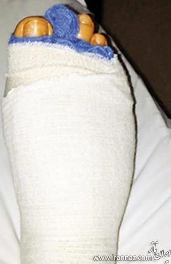 جراحی انگشت پا صرفا برای زیبایی!! (عکس)