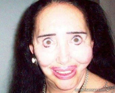 بدترین جراحی های زیبایی در دنیا را ببینید! (عکس)