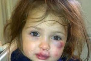 شکنجه کودک شش ساله با آب جوش توسط نامادری اش!