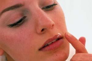 درمان های خانگی برای تبخال