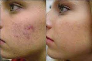 آیا راهی برای بستن منافذ باز شده پوست وجود دارد؟