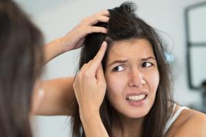 روش های طبیعی برای درمان شوره سر