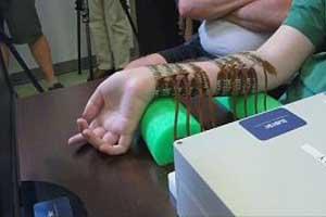 استفاده از فناوری نوروبریج برای تحرک اندام فلج