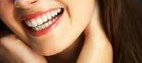 مراقبت های صحیح برای داشتن دندان های سفید و درخشان