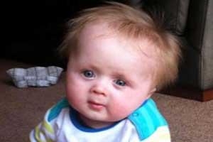 این پسر بچه به کوتولگی نادر مبتلاست! (عکس)