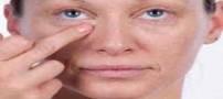 ویتامینه های موثر برای از بین بردن چروک های دور چشم