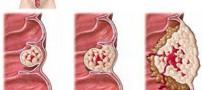 آنچه باید درباره بیماری پولیپ روده بزرگ بدانید