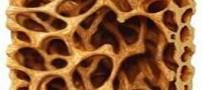 با این روش ها از پوکی استخوان پیشگیری کنید