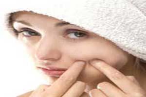 10 عاملی که روی جوش ها تأثیر بد می گذارند