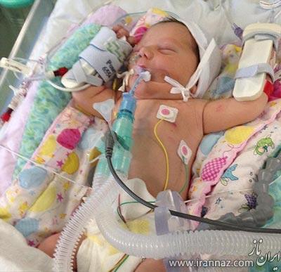 تولد نوزادی با قلب برعکس! (عکس)