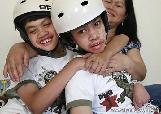 جشن دهمین سالگرد جدایی دوقلوهای فیلیپینی! (عکس)