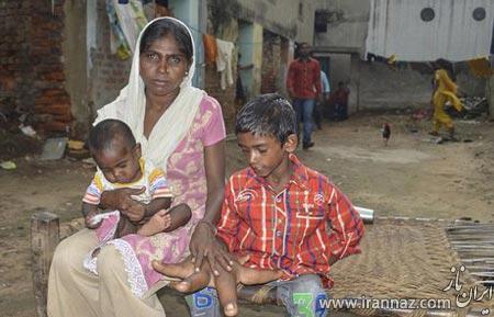 پسر بچه هندی با دست های باورنکردنی! (عکس)
