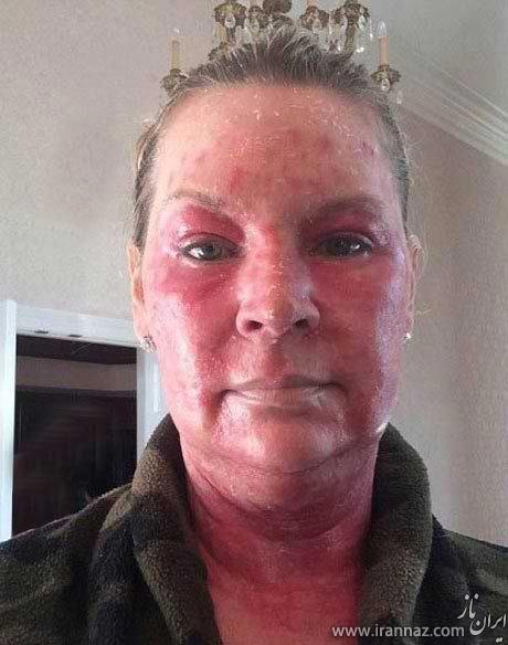 لیزر درمانی از خانم ثروتمند چهره ای وحشتناک ساخت! (عکس)