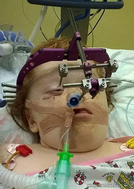 چهره عجیب و باورنکردنی این دختر در اثر بیماری! (عکس)