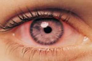 راه حلی برای رفع قرمزی چشم پس از آرایش