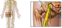 مؤثرترین راه های درمان سیاتیک