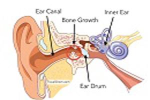 اهمیت خارج کردن آب داخل گوش