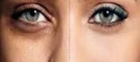علت گودی دور چشم چیست؟