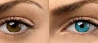 آنچه باید درباره جراحی تغییر رنگ چشم بدانید