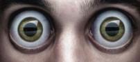 وجود یک کرم 2 سانتی در چشم بیمار! (عکس)