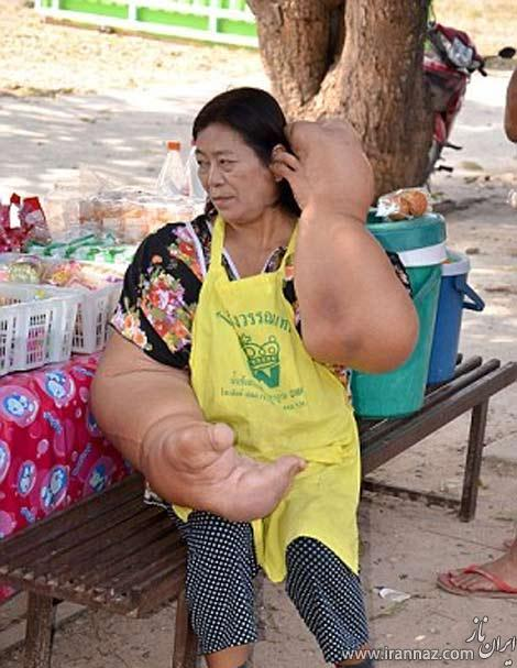 زندگی سخت این خانم با ظاهری عجیب (عکس)