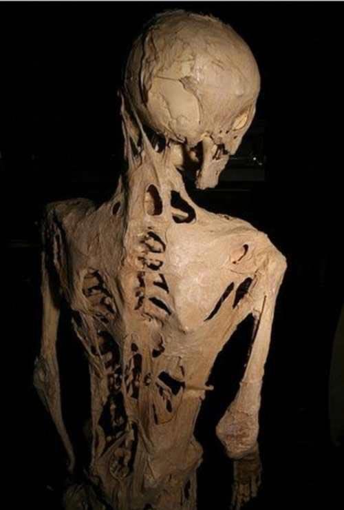 بیماری عجیب دختر 14 ساله به نام مرد سنگی (عکس)