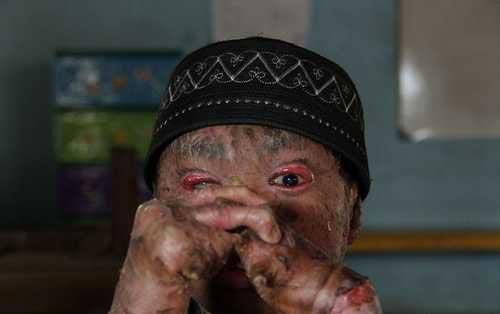 ظاهر وحشتناک پسر نوجوان به خاطر بیماری عجیب! (عکس)