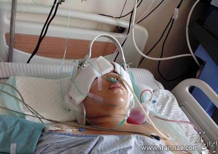 تصادف هولناک پوست سر این زن را کند! (عکس +18)
