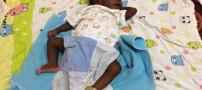 تولد نوزادی با ظاهری شبیه هشت پا (عکس)